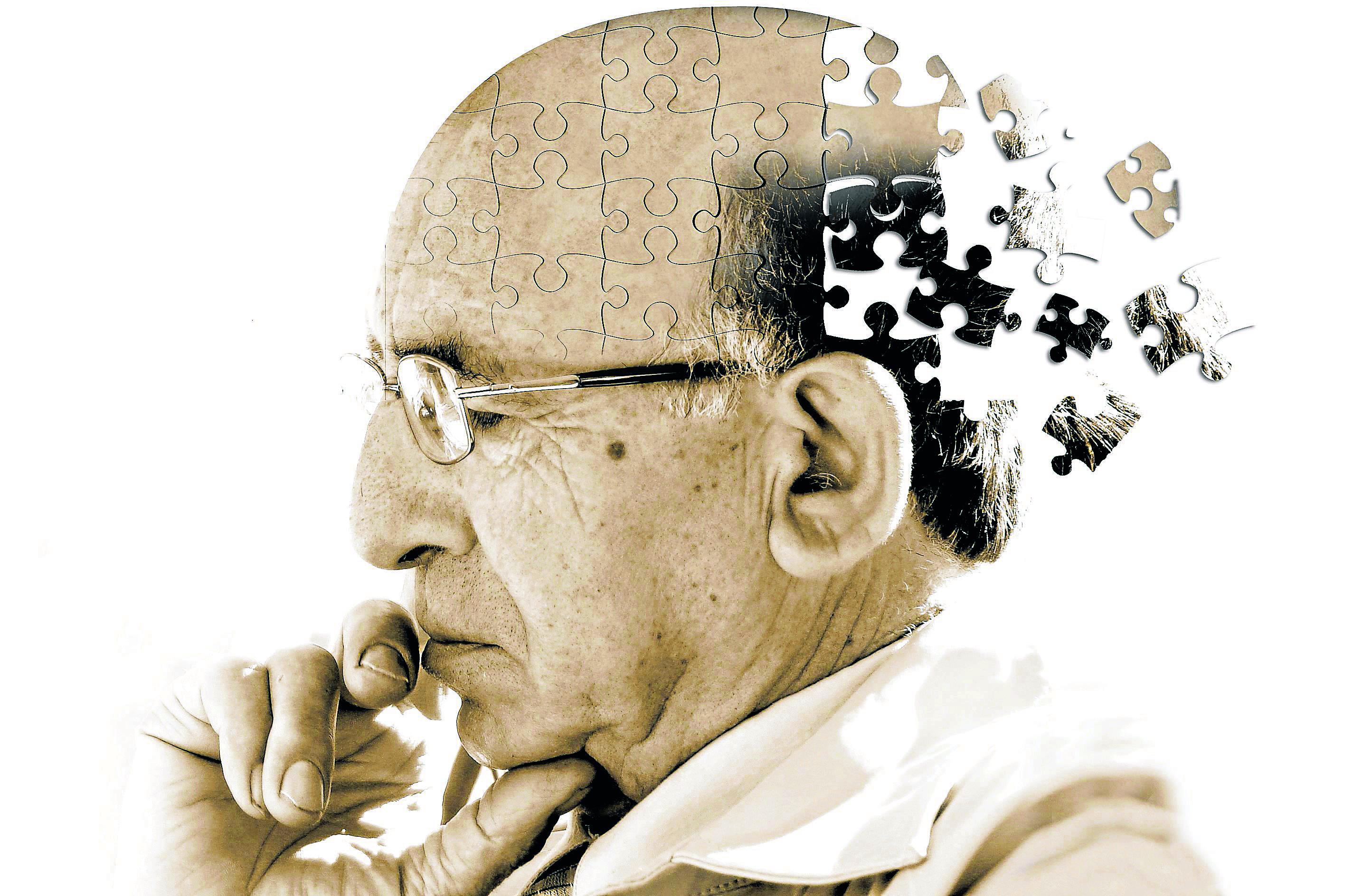 Dolgok, melyek Alzheimer-kórhoz vezetnek