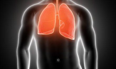 Új tüdőszűrőprogram indult az SZTE Radiológiai Klinikáján